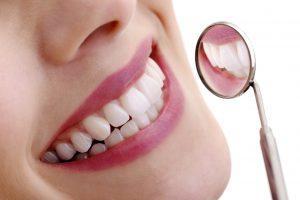 Ivoclar BPS Precision Denture Teeth