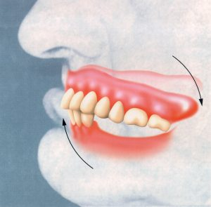 Complete Upper Denture Without an Opposing Lower Partial Denture.