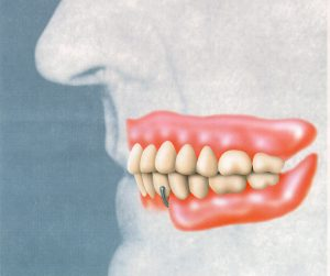 Complete Upper Denture Working in Balance with a Partial Lower Denture.