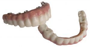 Upper and Lower Dentures Supported by Dental Implants