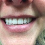 Lauren - After new BPS Precision Dentures