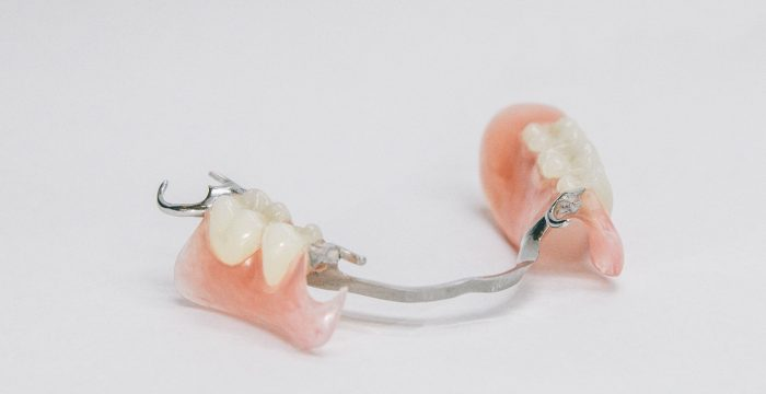 Lower Partial Denture with Valplast Clasps