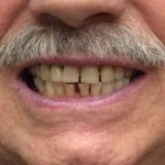 Mark - After when a new single tooth partial denture was inserted