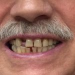 Mark - Before a new partial denture was made to fill the space where a tooth was extracted