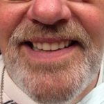 Brian - After new upper denture was made