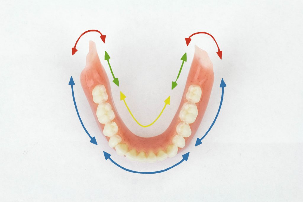 Lower Suction Denture Diagram