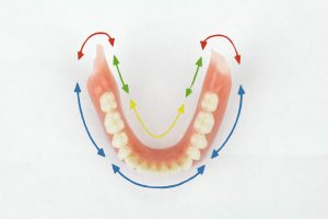 Lower dentures pictures