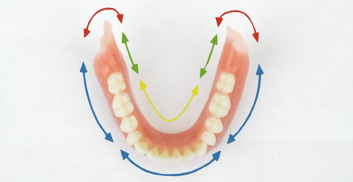 Lower Suction Denture Diagram