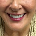 Rebecca - Upper Perfit Digital Implant Denture